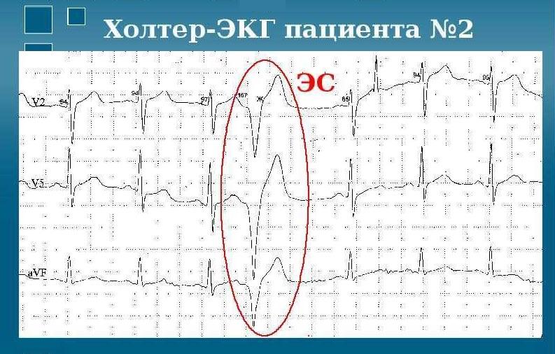 Холтер-ЭКГ пациента